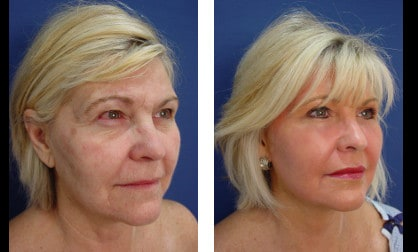 Neck lift Plastic Surgeon Orange County