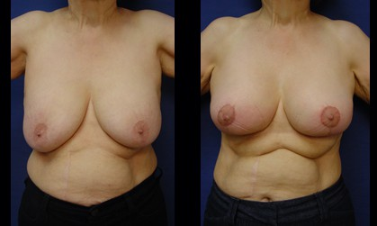 Breast Augmentation Plastic Surgeon Orange County