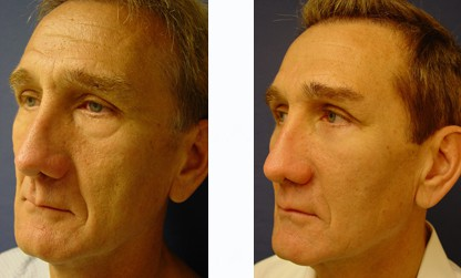 Lower Blepharoplasty Surgeon Orange County