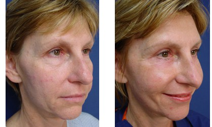 Lower Eyelid Plastic Surgeon Orange County