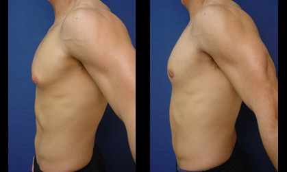 Male Breast Surgery Plastic Surgeon Orange County