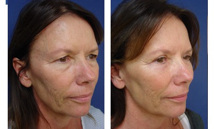 Upper Blepharoplasty Plastic Surgeon Orange County