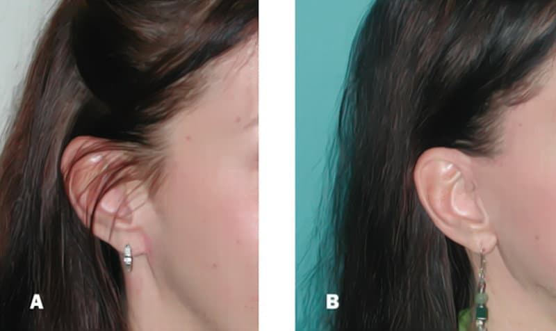 Pixie Ear Deformity Plastic Surgeon Orange County