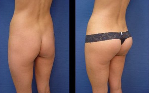 Butt Implant Patient Results Plastic Surgeon Orange County