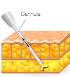 DrLaguna-cannula-vaser-liposuction