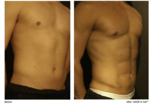 vaser-liposuction-female-patient-before-after