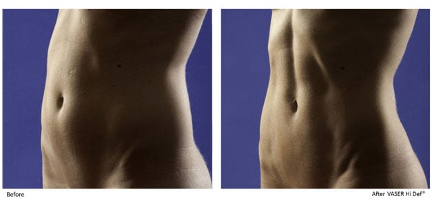 vaser-high-definition-liposuction-female-patient-before-after-1